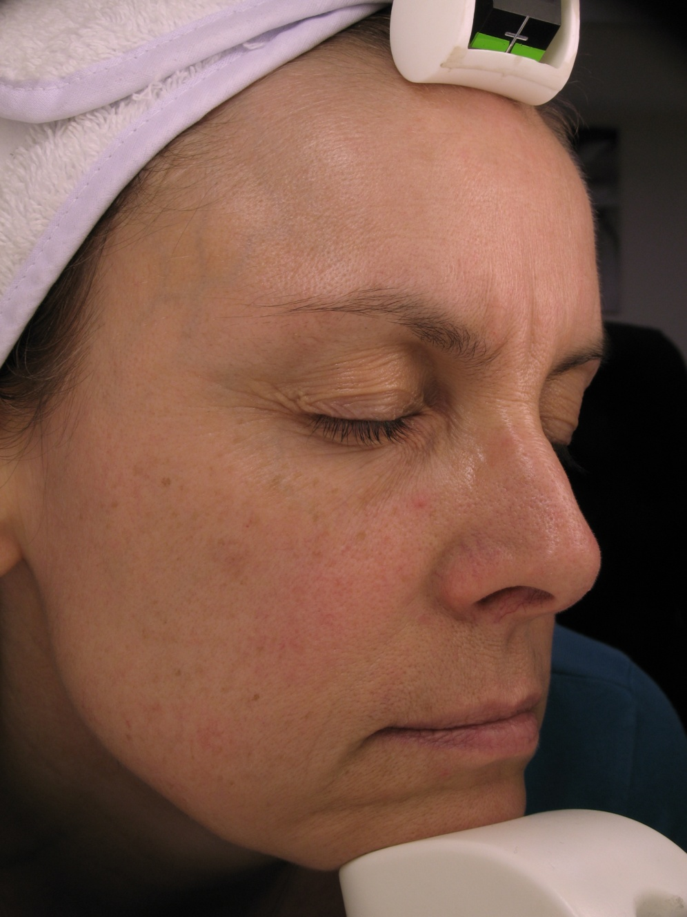 Collagen Stimulation Therapy Before Photo